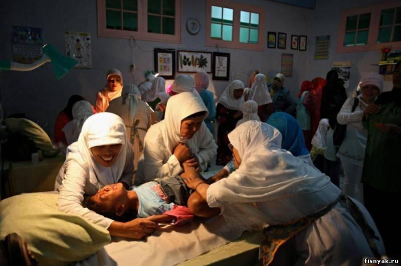 обрезание девочкам фото